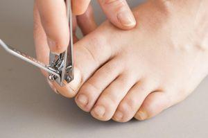 Стричь ногти на ногах