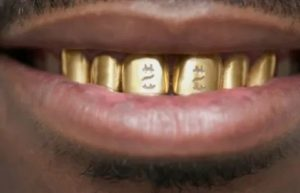 Золотые зубы к чему снятся