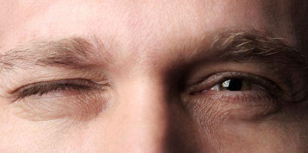 дергается глаз мужчине