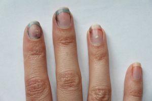 грязные ногти