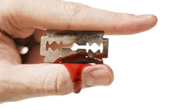 порезать пальцы бритвой