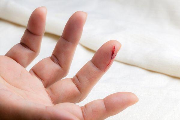 порезать палец